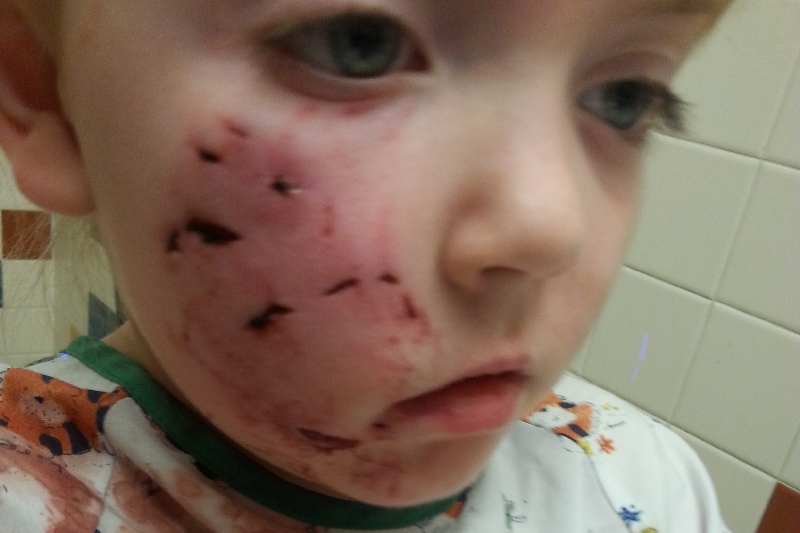 Fundraiser By Caitlyn Jaycox Very Sick Child Attacked