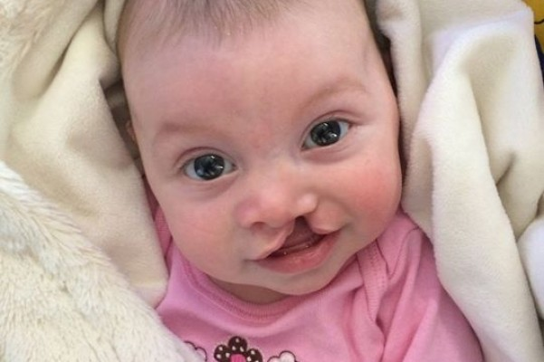 a child with cleft lip Cleft lip is a congenital defect in the upper lip where the maxillary prominence  fails to  the majority of children with a cleft palate will require orthodontics.