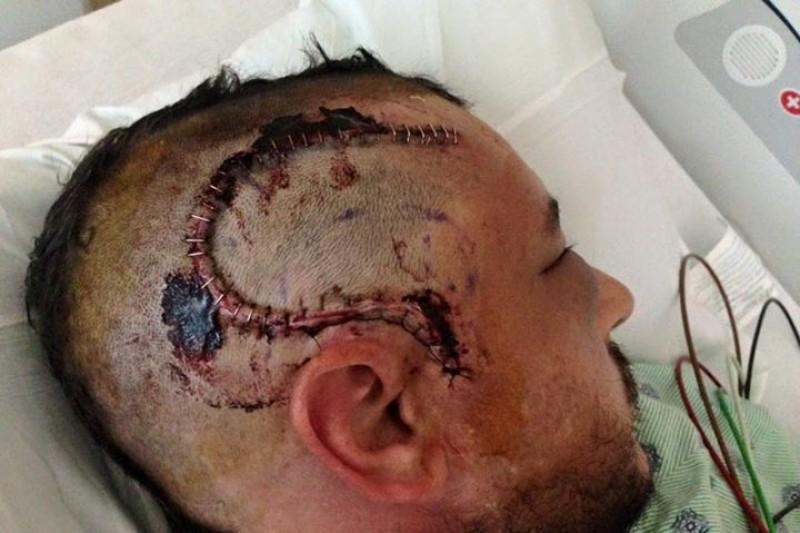 Brain tumor surgery recovery